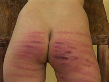 Her bottom is a mass of stripes and bruises