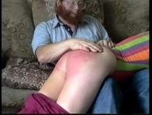 A very sore red bottom